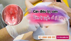 Những nguyên nhân gây viêm lộ tuyến cổ tử cung là gì?