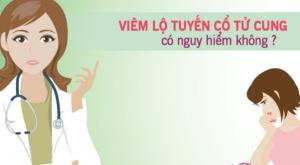Viêm lộ tuyến cổ tử cung là gì? Những điều cần biết