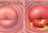 5+ Ảnh hưởng của bệnh viêm cổ tử cung – Nguy hiểm không ngờ