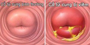 Ảnh hưởng của bệnh viêm cổ tử cung là gì? Những điều bạn cần biết