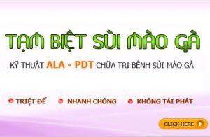 Điều trị sùi mào gà hiệu quả bằng phương pháp ALA - PDT