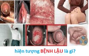 Hiện tượng bệnh lậu là gì? những điều bạn nên biết