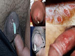 (Hình ảnh bệnh lậu tại cơ quan sinh dục của nam giới)
