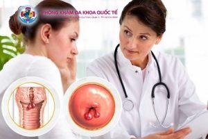 Nguyên nhân gây polyp cổ tử cung ở phụ nữ