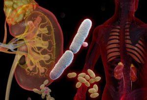 Những nguyên nhân gây  lây nhiễm viêm đường tiết niệu