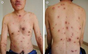Những biểu hiện của bệnh giang mai giai đoạn 3