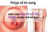 Làm sao để nhận biết biểu hiện polyp cổ tử cungở nữ?