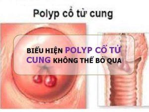 Những biểu hiện polyp cổ tử cung bạn không thể bỏ qua