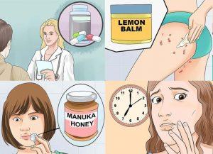 Cách điều trị mụn rộp sinh dục tại nhà hiệu quả