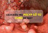 Cách chữa trị bệnh polyp cổ tử cung ở chị em phụ nữ hiệu quả