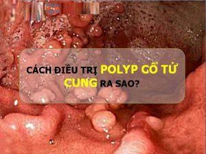 cách chữa trị bệnh polyp cổ tử cung hiệu quả