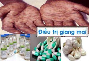 Phương pháp điều trị bệnh giang mai hiệu quả tại đa khoa quốc tế HCM