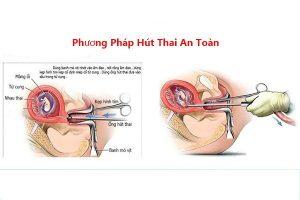 Phá thai bằng phương pháp hút