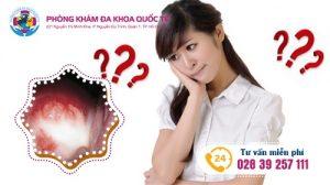 Phương pháp điều trị viêm âm đạo hiệu quả